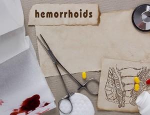 Piles Hemorrhoids